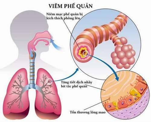 bệnh viêm phế quản cấp là căn bệnh về hô hấp thường gặp nhất ở Việt Nam