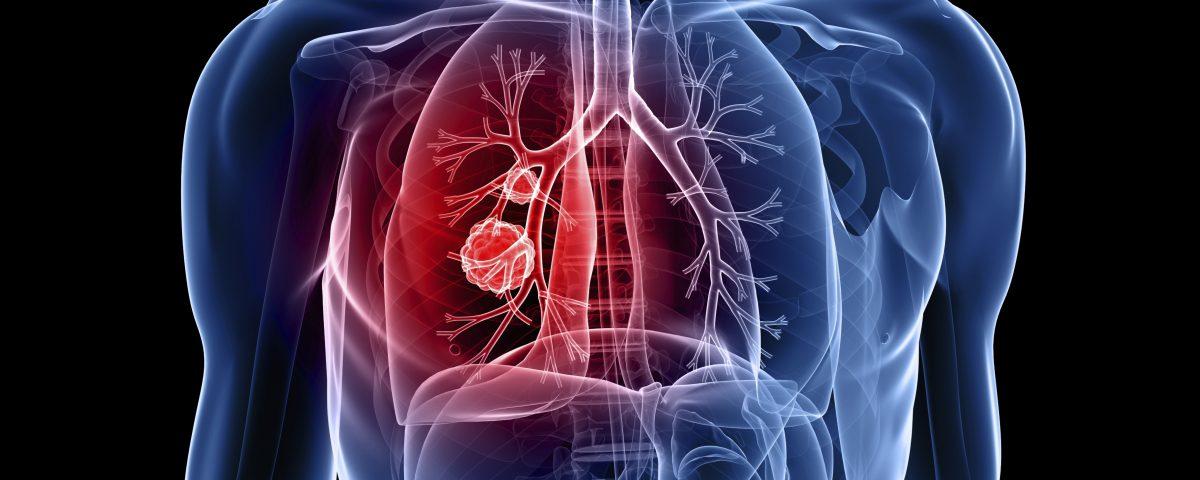 Các bệnh hô hấp thường gặp